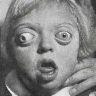 image: Patient with Crouzon syndrome (photo from classic Crouzon's paper)