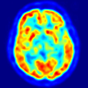 image: This is a transaxial slice of the brain of a 56 year old patient (male) taken with positron emission tomography (PET). The injected dose have been 282 MBq of 18F-FDG and the image was generated from a 20 minutes measurement with an ECAT Exact HR+ PET Scanner. Red areas show more accumulated tracer substance (18F-FDG) and blue areas are regions where low to no tracer have been accumulated.